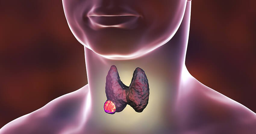 lump in your neck-thyroid cancer