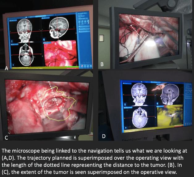 neuronavigation image guidance