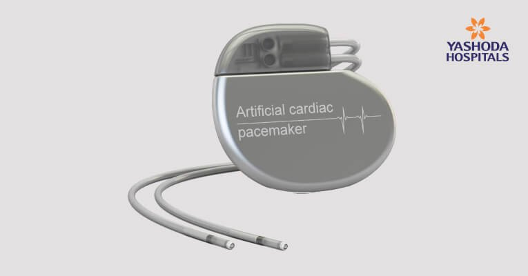 pacemaker - electronic device