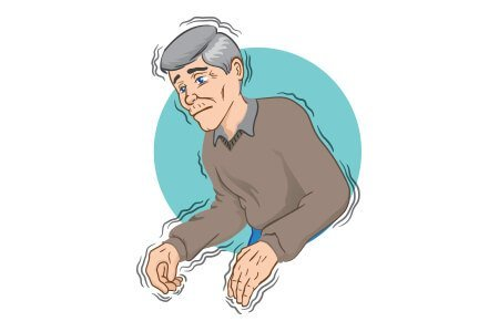 Parkinsons Disease Stages >> Parkinson's Disease: Symptoms Causes Diagnosis & Treatment