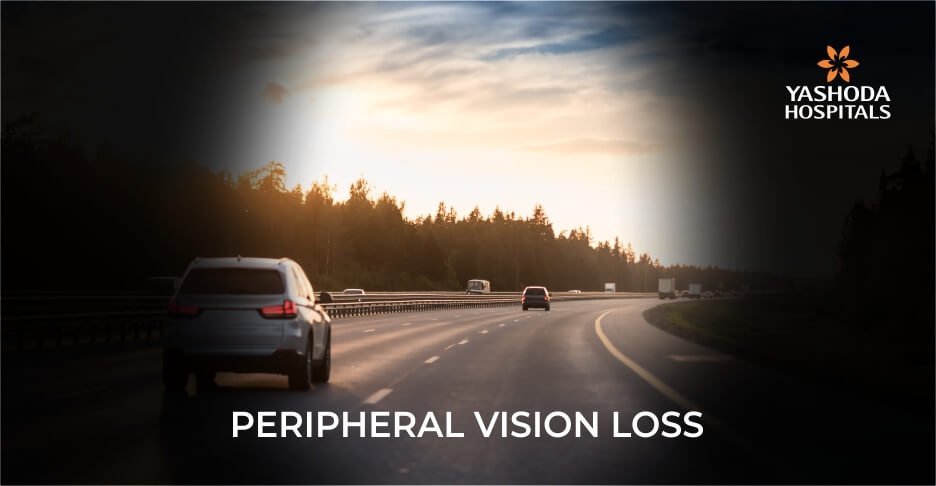 How does peripheral vision loss affect daily life?
