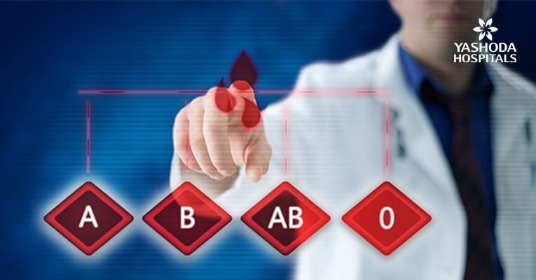 Kidney transplant FAQs
