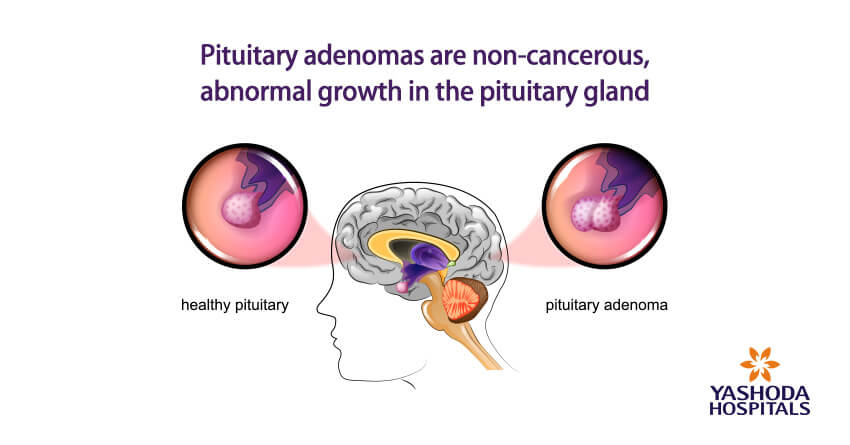 Pituitary Gland Tumors Important Things To Know About