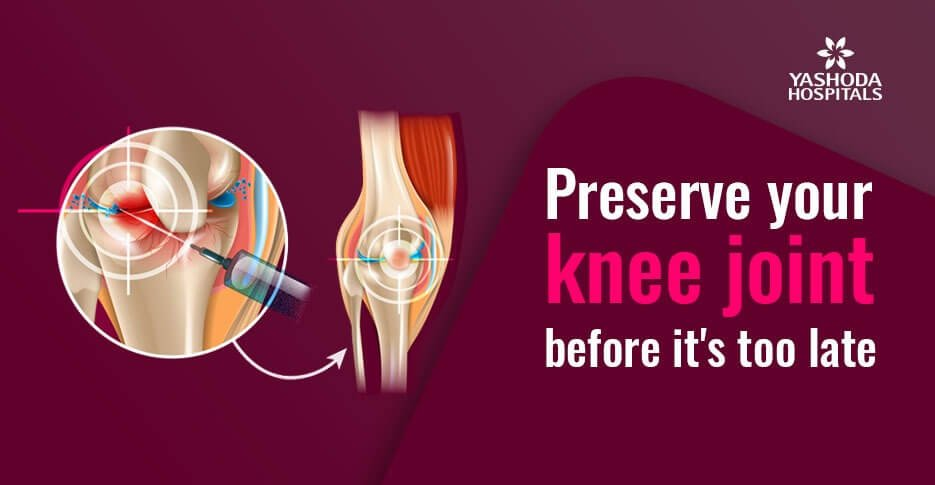Knee joint preservation – Why and how its done?