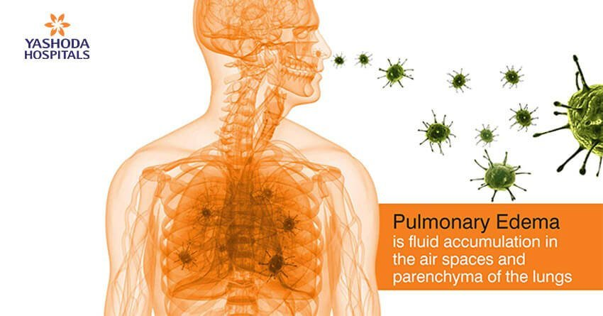 Pulmonology Edema: Excess fluid in the air spaces and parenchyma of the lungs
