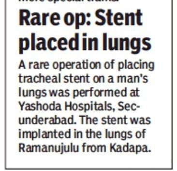 rare procedure of tracheal stenting7