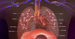 respiratory diseases air sacs