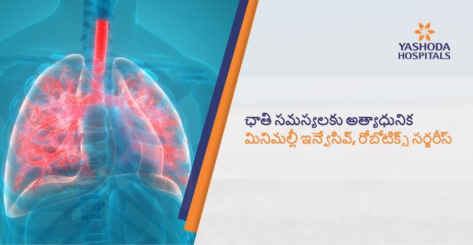 robotic surgeries for lung diseases