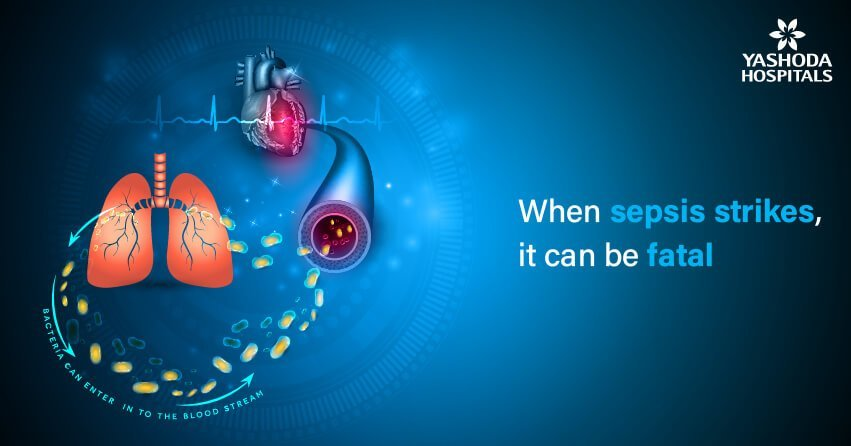 Is sepsis always life-threatening