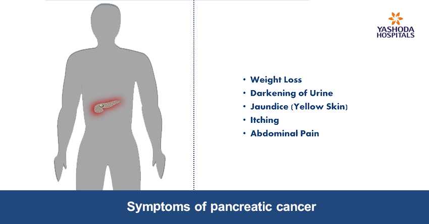 signs & symptoms of pancreatic cancer