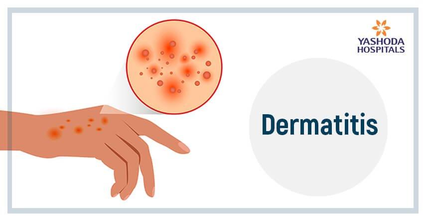 skin-dermatitis