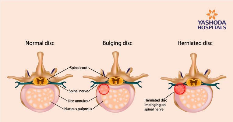 slipped herniated disc or lumbar disc disease