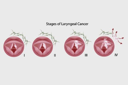 stages of throat cancer
