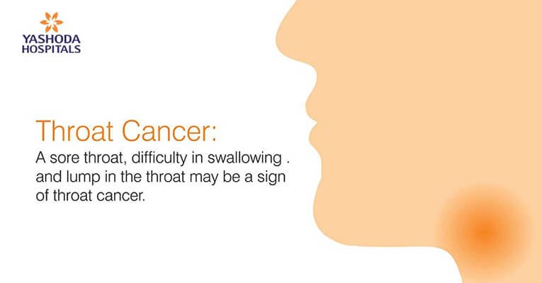 throat Cancer difficulty in swallowing
