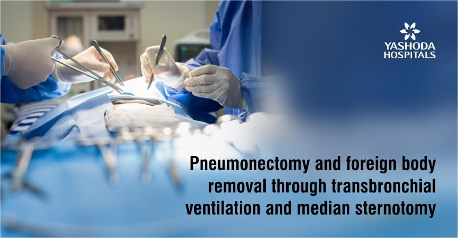 transbronchial ventilation and median sternotomy