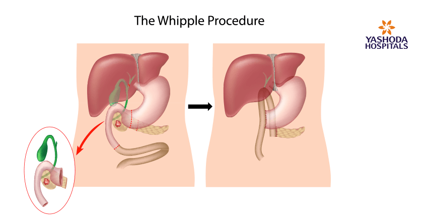treatment options of pancreatic cancer-Whipple procedure