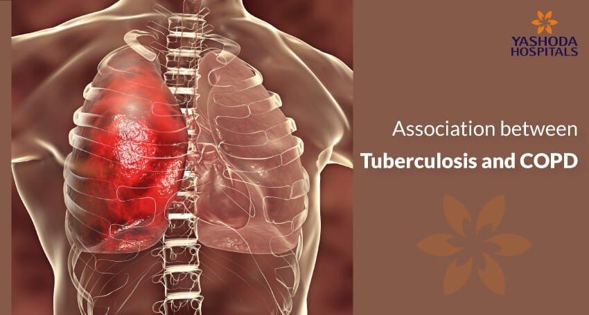 Does tuberculosis cause COPD, pulmonary fibrosis or restrictive lung disease?