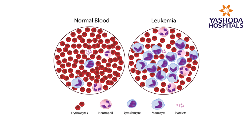 types of blood cancers-leukaemia-lymphoma-myeloma