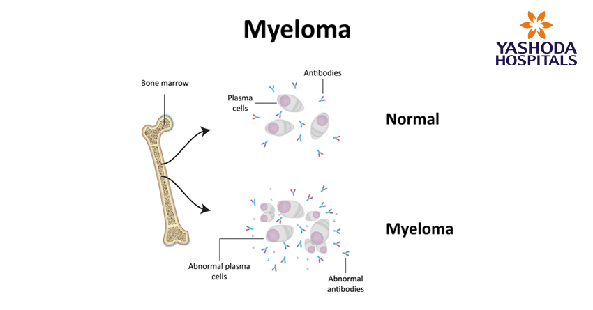 types of blood cancers-myeloma