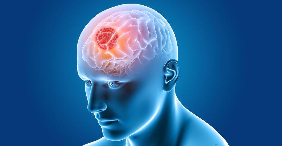 understanding-brain-tumours