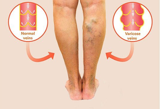 varicose veins surgery cost in Hyderabad