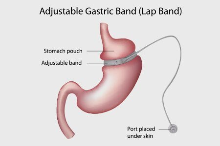 Laparoscopic Adjustable Gastric Banding (LAGB)
