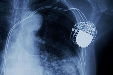 what are implantable heart devices