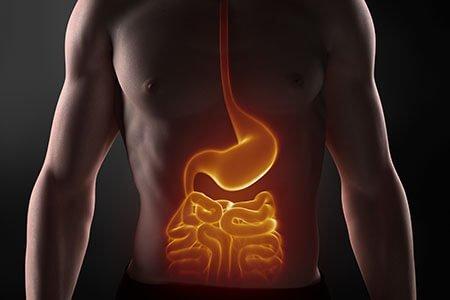inflammatory bowel disease or chrohns disease