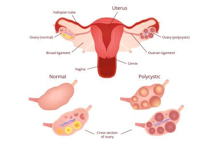 What is PCOD or PCOS